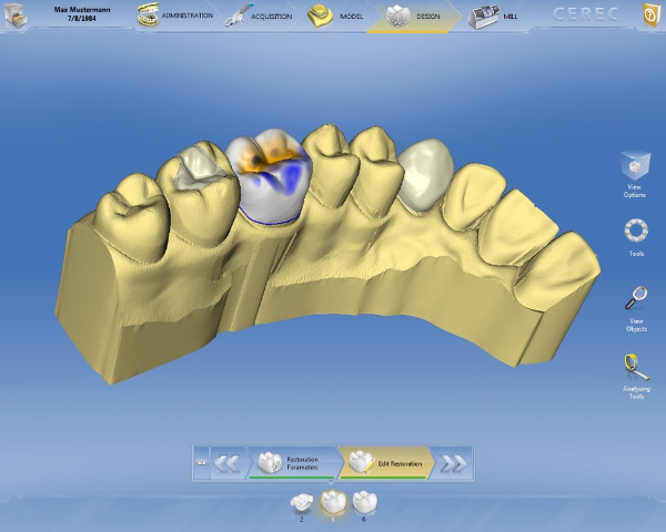 CEREC Software